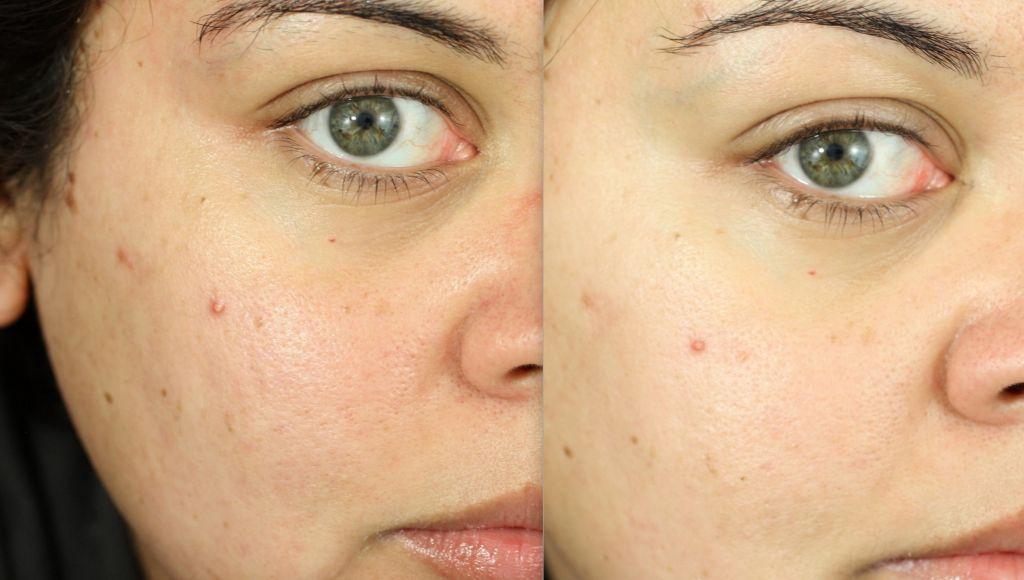 своей работе гликолевый пилинг отзывы до и после фото для глаз осуществляют