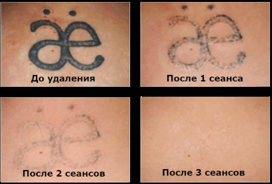 Лазерное удаление татуировок цена спб Лазерная коагуляция сосудов и вен Улица Академика Королева Чебоксары