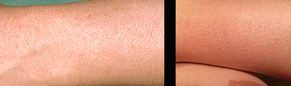 пигментация после восковой депиляции