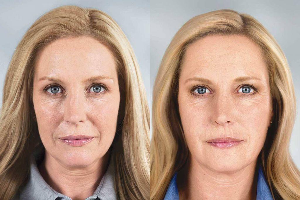 ботекс морщин фото до и после отзывы эффективная приманка, позволяющая